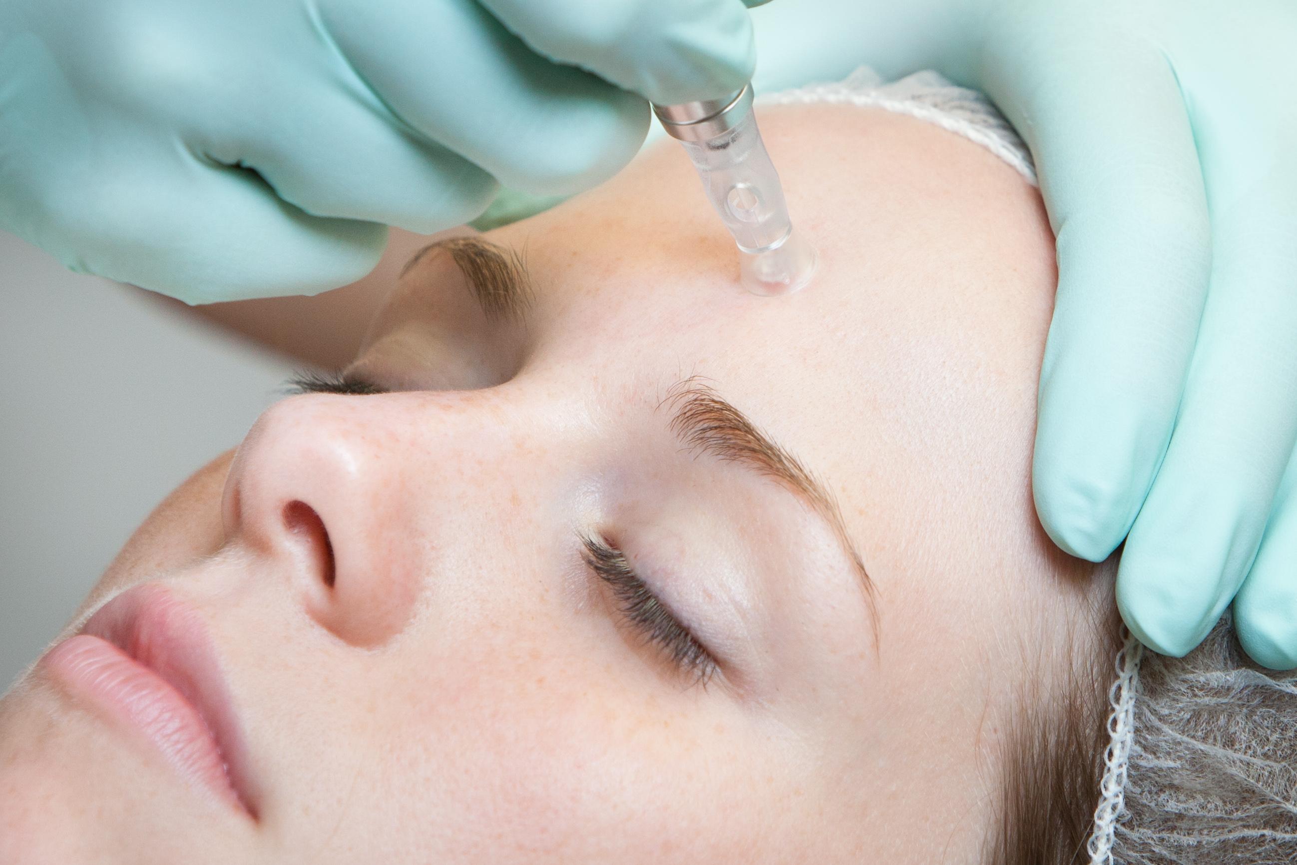 Mesoterapia y Revitalización